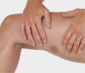 Contusion Muscle Bruise | Physiotherapy Parramatta | Castle Hill | Wetherill Park | Gregory Hills