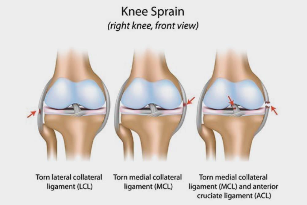 ligament-injuries.jpg