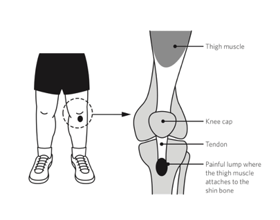 Diagram of Osgood Schlatter Disease