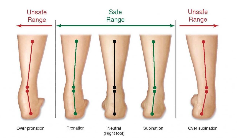 Pronation of Foot