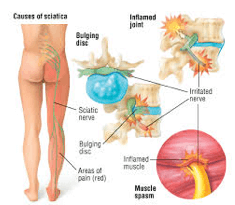 Diagram of Sciatica