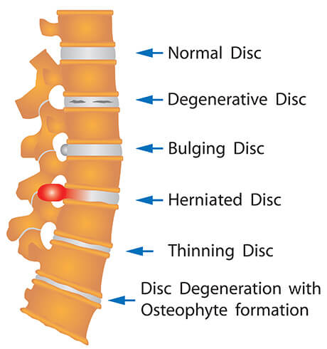 spi-common-disc-injury