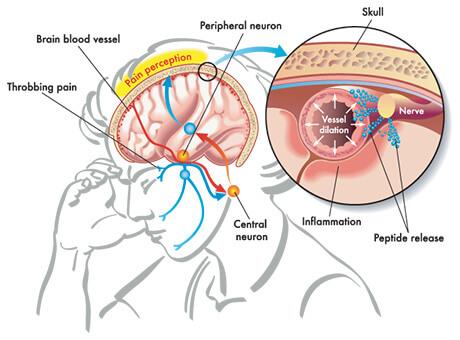 spi-common-headaches